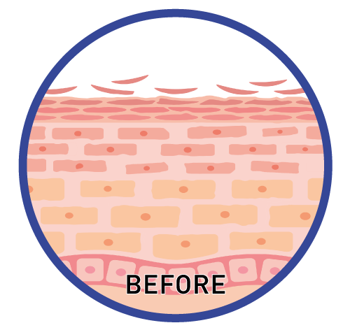 How the inner layer of your skin looks like before Rejuran