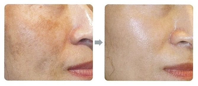 Removed dark spots caused by pimples in 1 week after 1 session of Pico Laser at CSK Clinic.