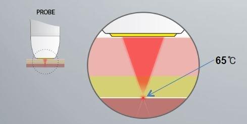 HIFU vs Ultherapy: HIFU ultrasound beam